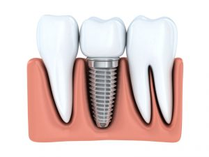 Dental implants from Deer Park Dentistry replace one or more teeth lost to decay, gum disease or accident. Learn the details about these prosthetic wonders.