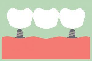 Your dentist in Deer Park restores dental implants