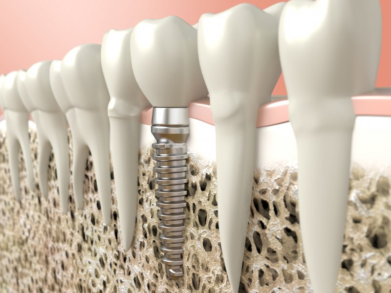 dental implants placed in the patient's mouth