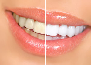 teeth smile whitening