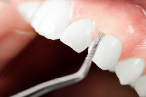 Close up of gum examination